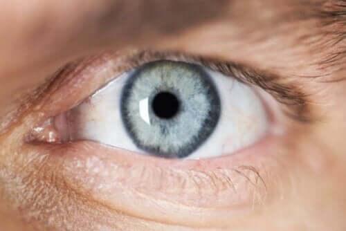 Et øye med forsnevret pupill.
