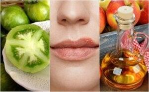 Bekjemp forkjølelsessår med 5 naturlige behandlinger