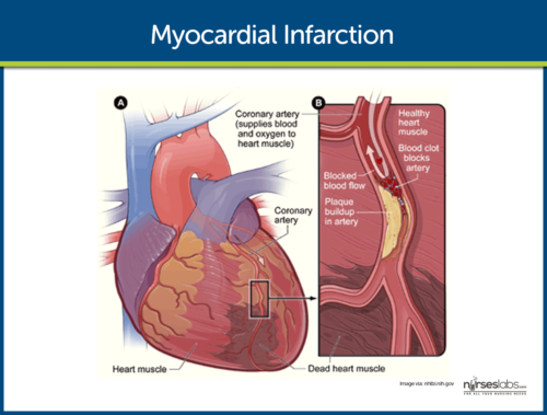 Illustrasjon hjerteinfarkt.
