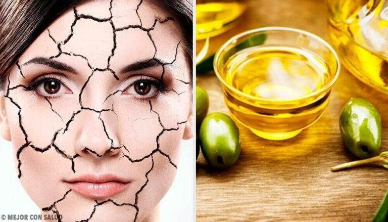 Enkle og naturlige måter å lindre tørr hud på
