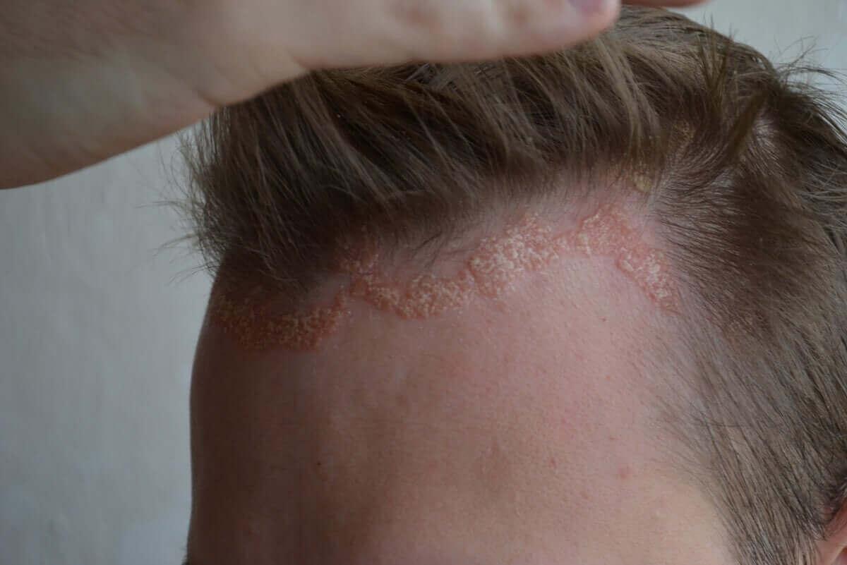 Psoriasis i hodebunnen