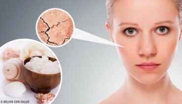 5 naturlige remedier for å bli kvitt tørr hud