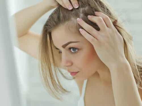 5 naturlige remedier for å lindre sensitiv hodebunn