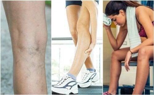 6 ting som kan forårsake muskelkramper
