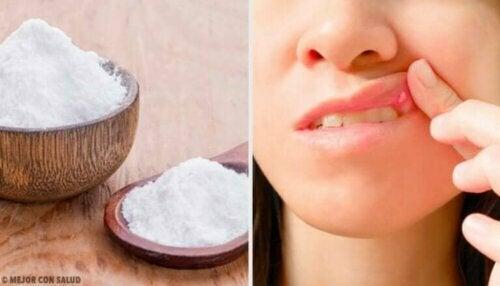 8 remedier som kan hjelpe til med å helbrede munnsår