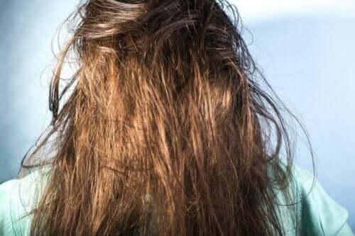En kvinne med fett og bustete hår.
