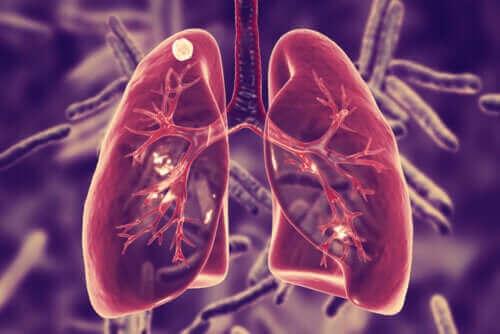 Hva er lungetuberkulose og hva er symptomene?