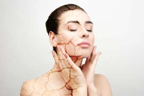 Kvinne med tørr hud berører ansiktet sitt.