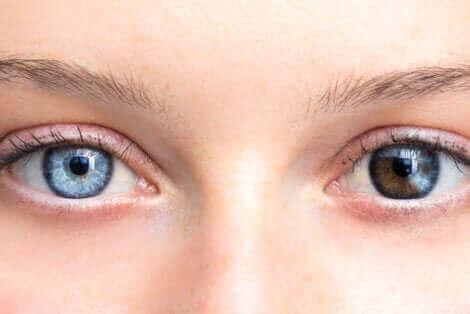Kvinne med to forskjellige farger på øynene.