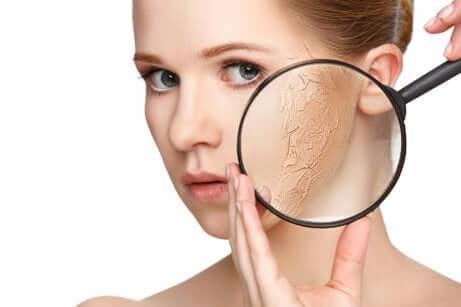 Behandle tørr hud