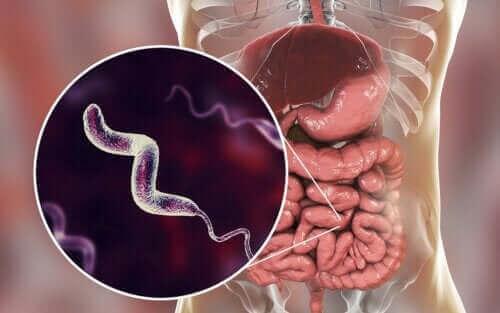 Kjennetegn ved campylobacterinfeksjoner