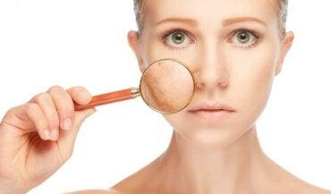 De vanligste hudproblemene: Slik kan du behandle dem