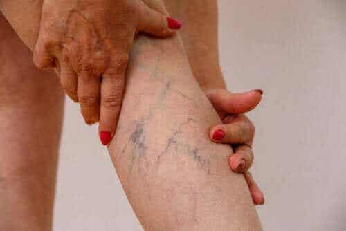 Beskrivelse av årebetennelse, symptomer og behandling