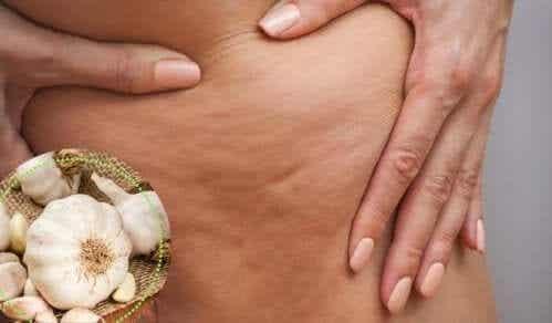 Fem forskjellige måter å bekjempe infeksiøs cellulitt på