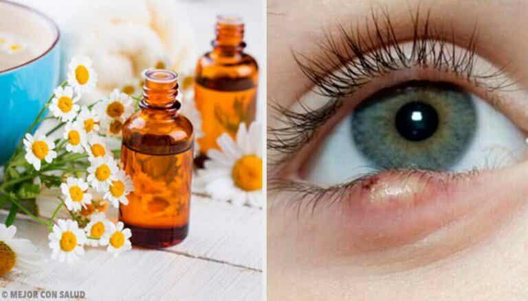5 enkle triks for å behandle sti på øyet