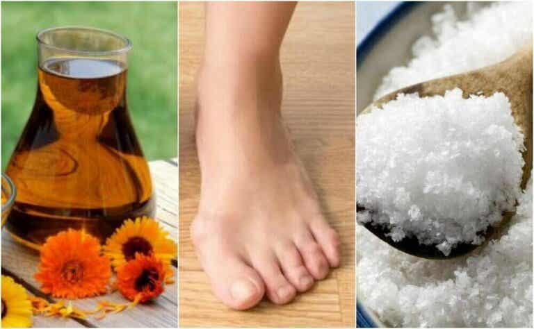 4 naturlige remedier for hallux valgus
