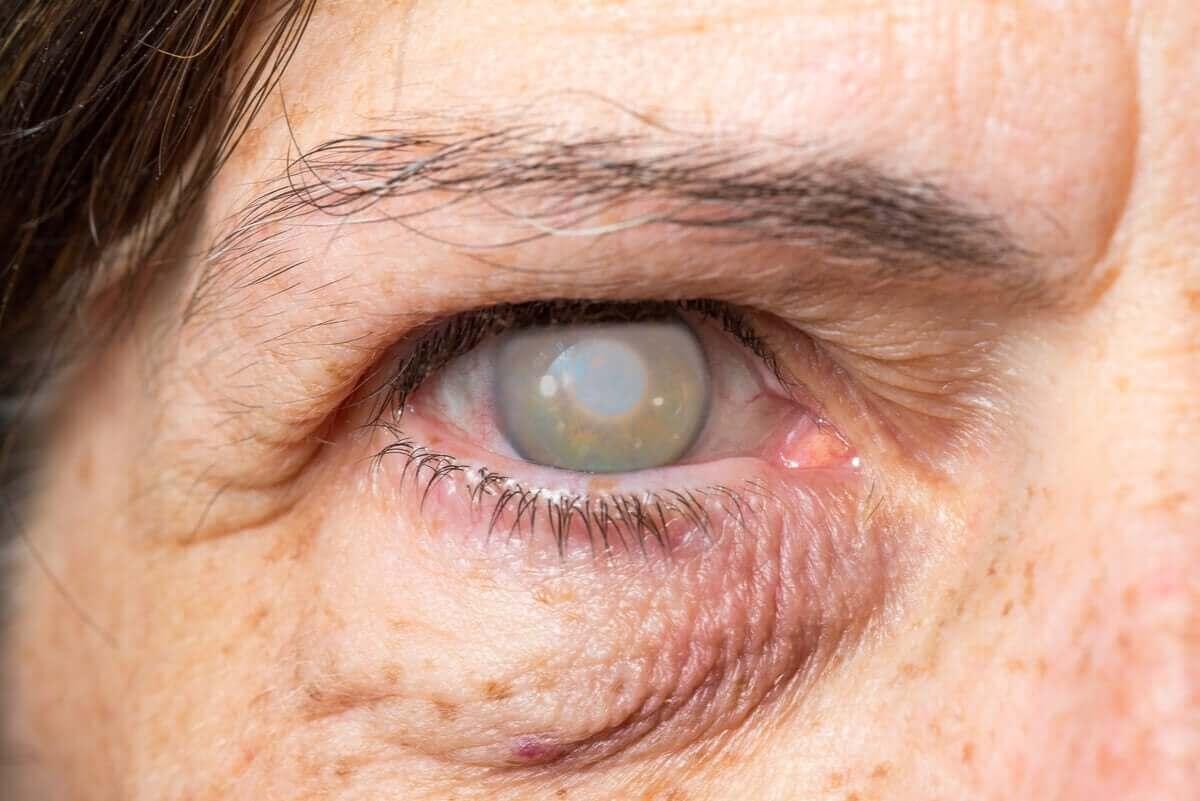 Grå stær forårsaker synstap