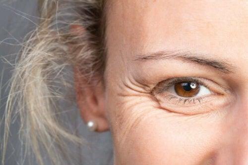 En kvinne med rynker rundt øynene