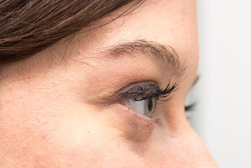 En kvinne med poser under øynene
