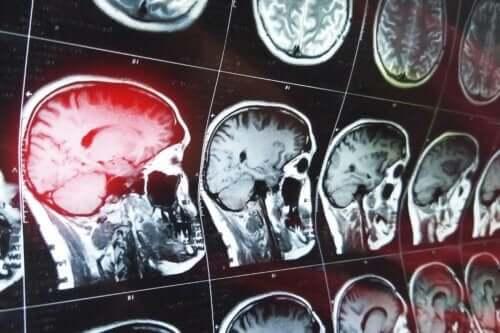 Konfabulasjoner etter hjerneskade
