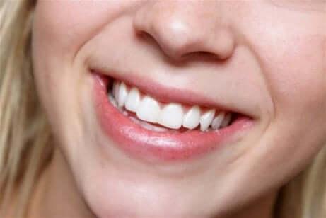 En dame som viser de hvite tennene sine.
