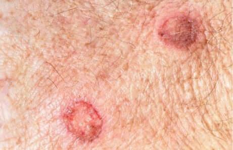 Føflekker og melanom