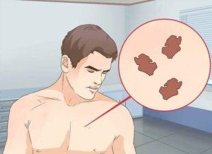 Hva er riktig behandling for en unormal føflekk?
