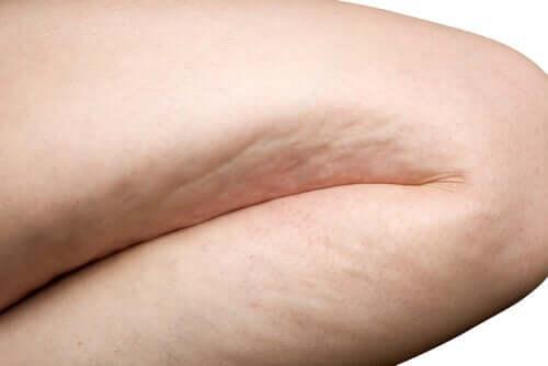 lår med cellulitter