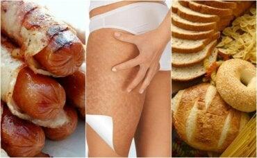 6 matvarer som forverrer cellulitter