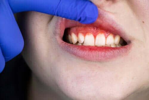 Symptomer på og behandling av nekrotiserende ulcerøs gingivitt