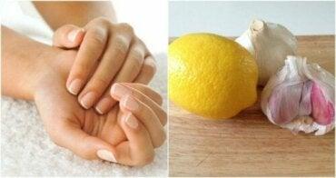 Hvordan styrke neglene dine med hvitløk og sitron