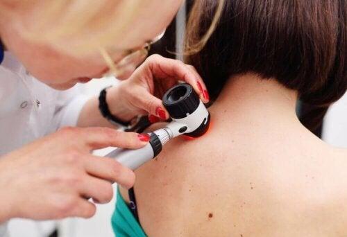 Er melanom den eneste alvorlige typen hudkreft?
