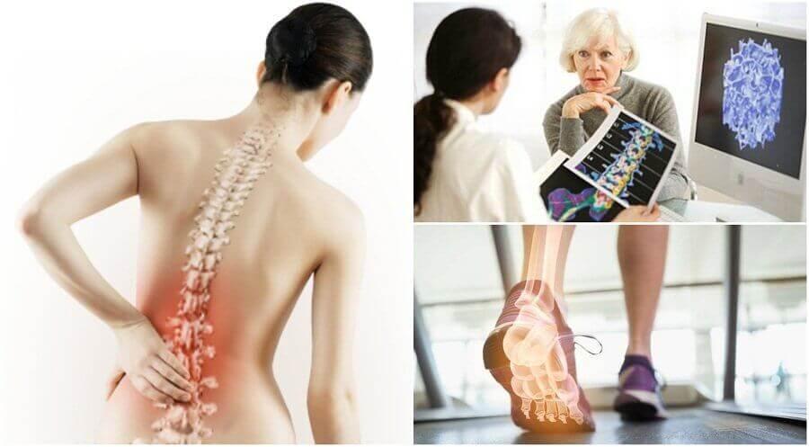 Osteoporose kan føre til til smerter i skulderbladet