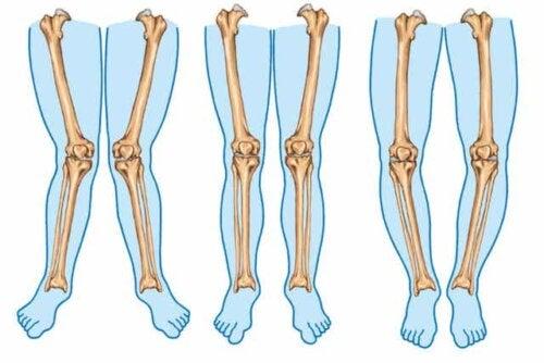 Ulike typer ben.