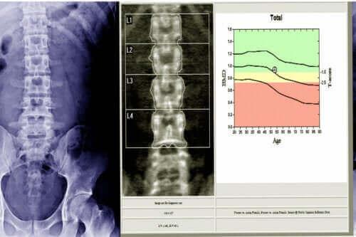 Hva er en beindensitometri?