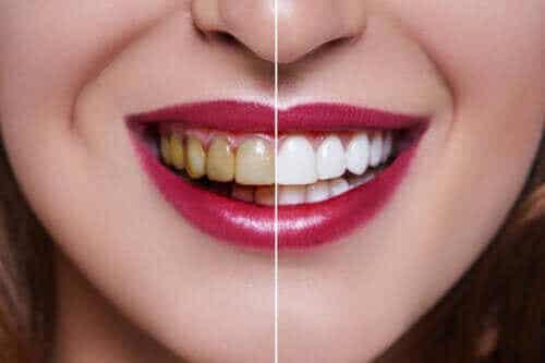 Årsakene til misfargede tenner