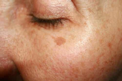 En kvinne med flekker på huden.
