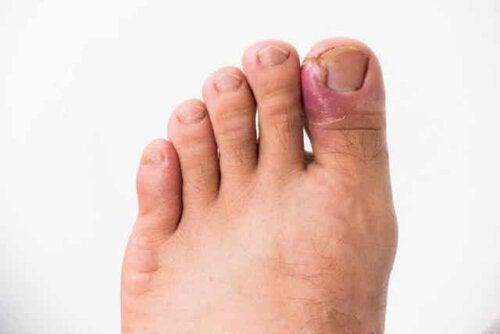 En infisert tånegl.
