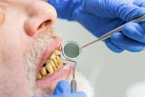 En mann med melanose som er hos tannlegen.