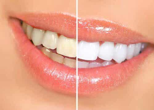 En sammenligning av hvite og gule tenner.