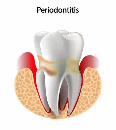 En tann med periodontitt.