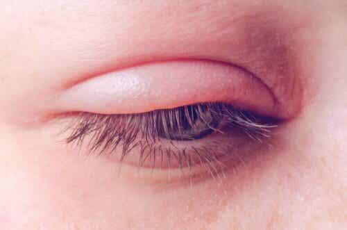 Et øye med et hovent øyelokk.