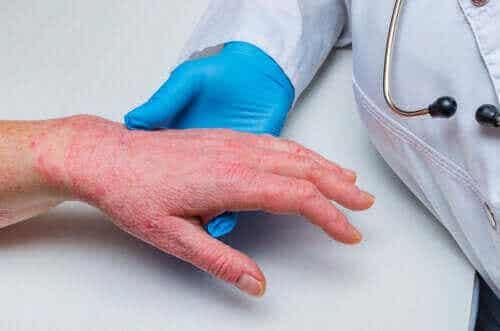 Psoriasis og koronar hjertesykdom: Hvordan er de relatert?