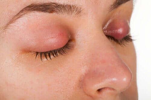Symptomer og behandling av øyelokksbetennelse