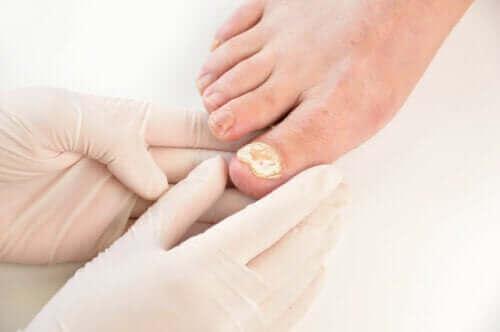 Syv måter å forhindre neglesoppinfeksjoner på