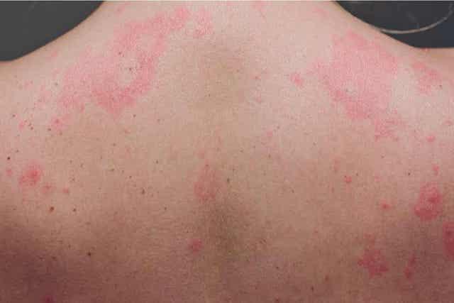 En kvinne med utslett over hele ryggen