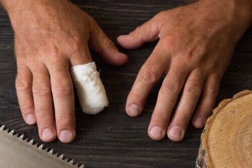 Førstehjelp ved traumatisk amputasjon av en finger