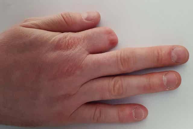 En hånd med en amputert finger