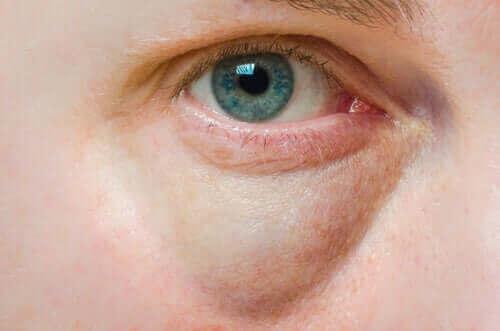 Årsaker til hovne øyelokk og behandlinger