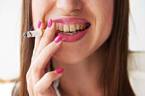Melanose hos røykere: Symptomer og behandling